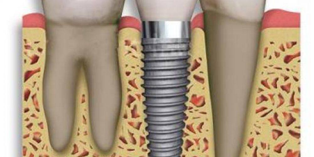 Implantes: una solución que hay que cuidar como los dientes.