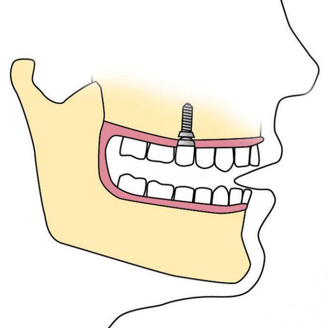 Implantología, prótesis dental y cirugía oral