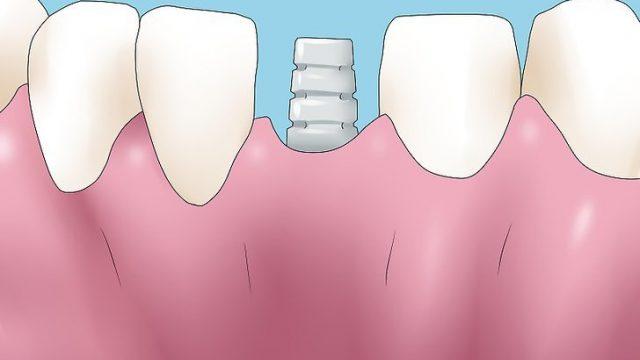 Vídeo: Consecuencias de la pérdida de una pieza dental